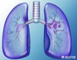 癌症患病真的和吸菸有關嗎?